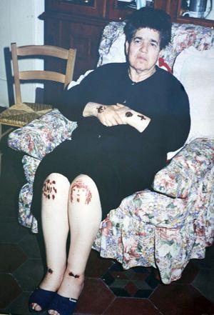 Fenomeno delle stigmate accaduto a Natuzza Evolo